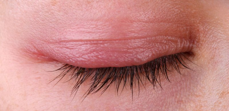 Symptoms of Blepharitis and Infection Of Eyelash Follicles.