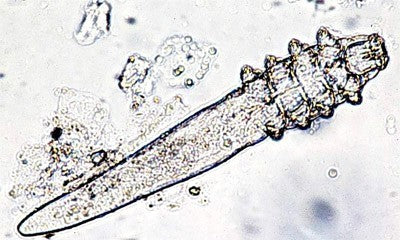 What is Demodex And Is It possible To Kill Mites Completely Or It Is Impossible To Defeat Demodex.