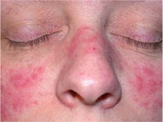 Common Signs of Demodex Rosacea and Its Symptoms That Should Alarm And Send You To See A Doctor.