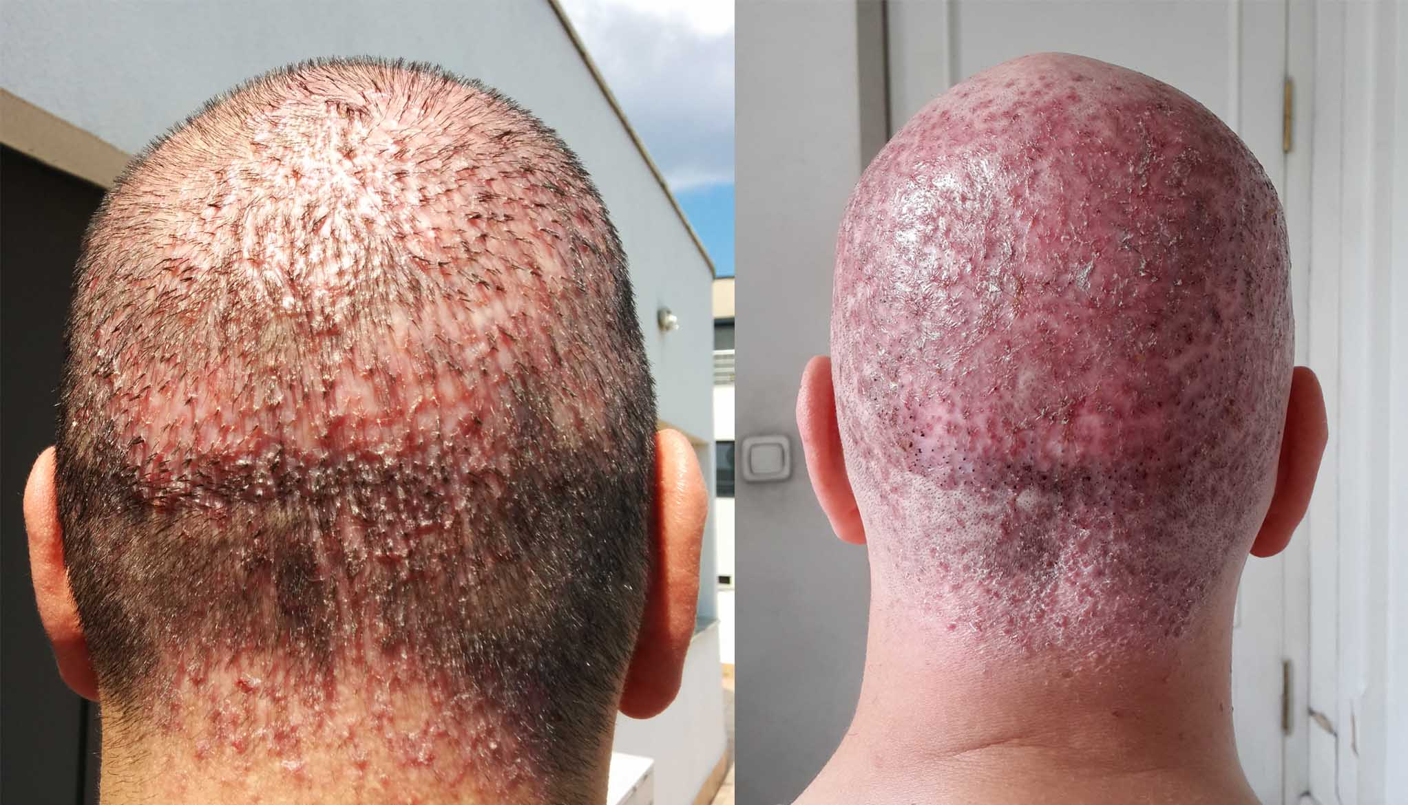 What are symptoms and best available treatment options for head scalp folliculitis.