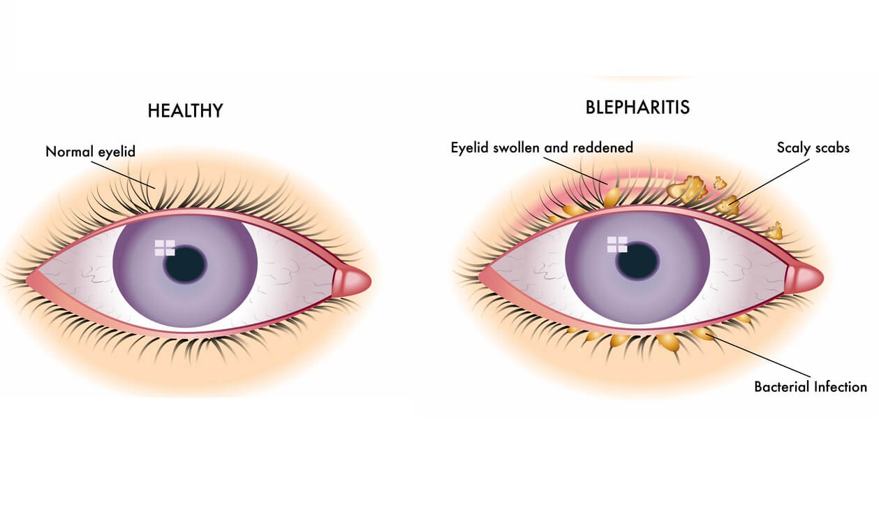 Best Natural And Most Effective Alternative Treatments for Blepharitis and Itchy Eyes.