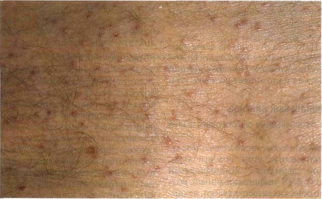 Folliculitis forms and natural home remedies for fast effective treatment.