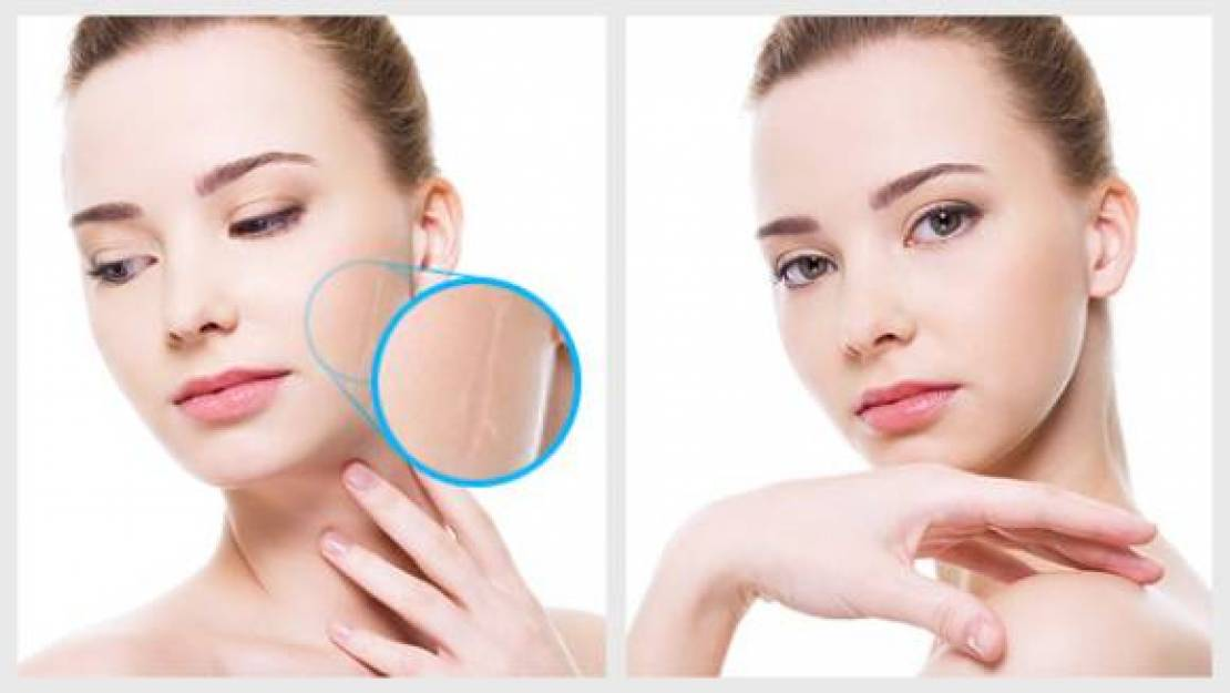 Treatment for Post Demodex Rosacea Acne Scars and Marks.