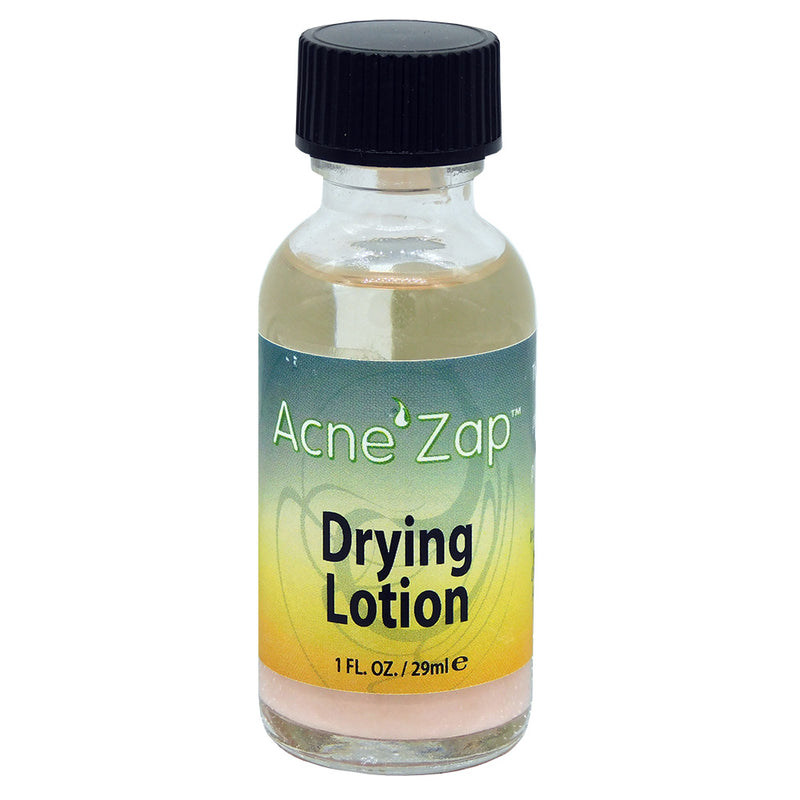 Ovante Acne Spot Treatment, Drying Lotion AcneZap, Dries Acne, Pimples & Blemishes - 1.0 fl oz.<s class='face body'>&nbsp;</s> - ovante