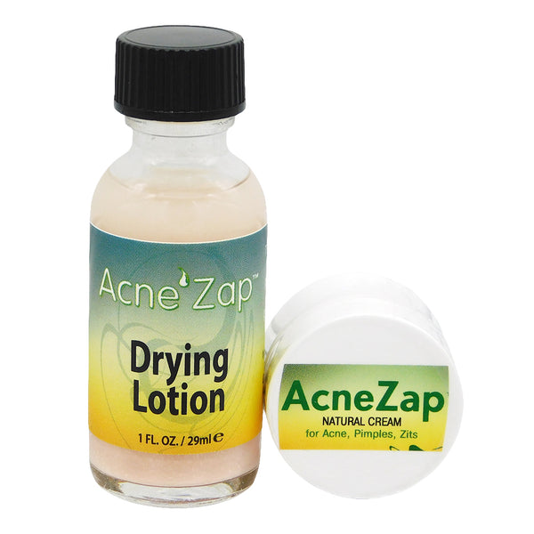 AcneZap Cystic Acne Spot Eliminating Treatment Plus Extra Strength Drying Lotion for Severe Inflamed Acne, Pimples, Zits, Blemishes on Face and Body.<s class='face'> </s> - ovante
