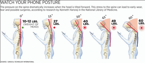 what text neck looks like and the poor posture it creates