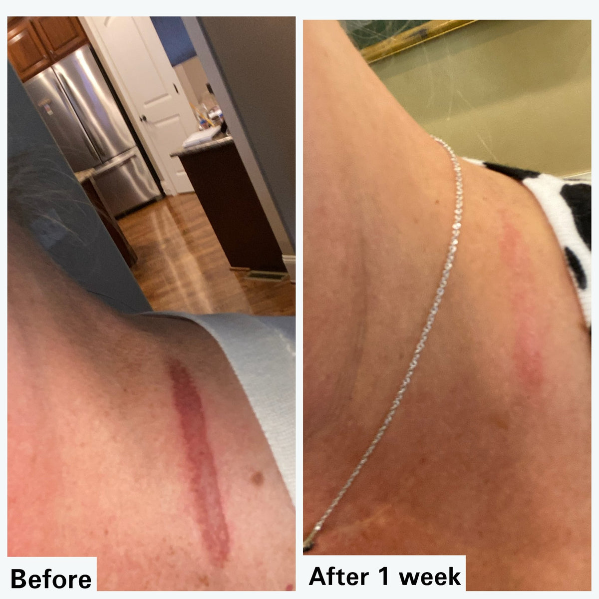 RENEWAL: Stretchmarks and Scar Lightening Serum