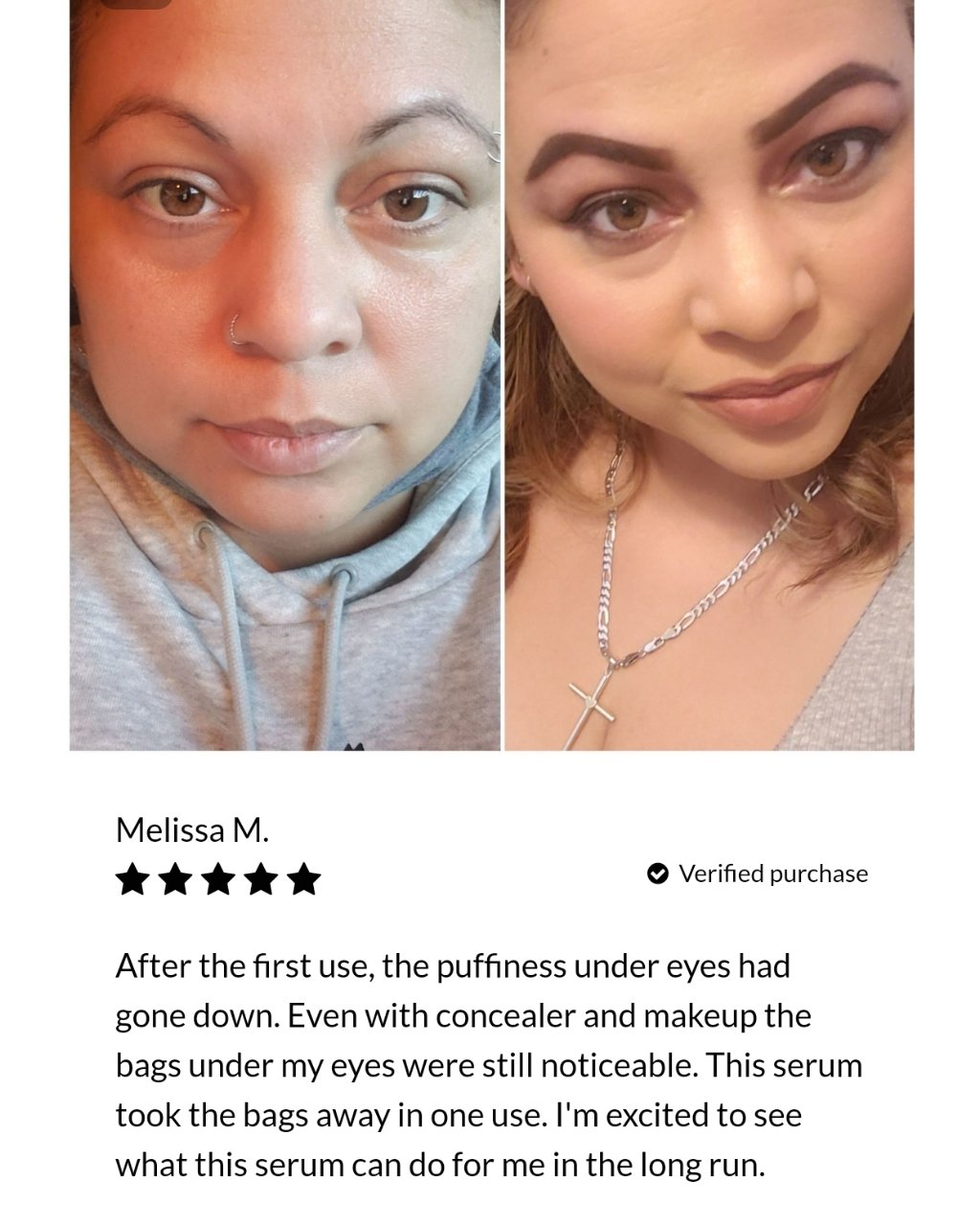 Face Perfecting Bundle (skin and neck)