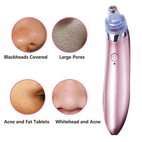 Premium Electric Pore Cleanser Rechargeable Vacuum Blackhead Suction Extractor Tool