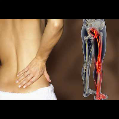 Reduce low back pain and eliminate sciatica with the Invertabelt home physical therapy and chiropractic treatment that is FDA approved and holds two patents.