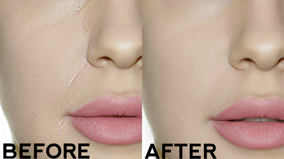 How To Stop Your Foundation From Creasing In Your Smile Lines