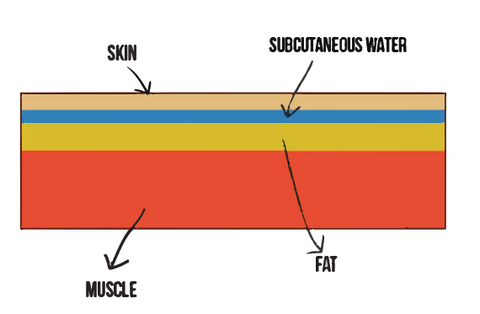 subcutaneous water diagram