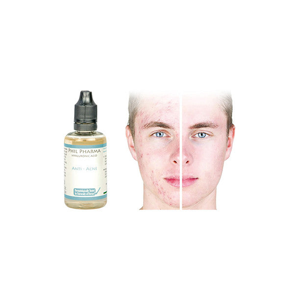 Skin Up®  - Anti-Acne