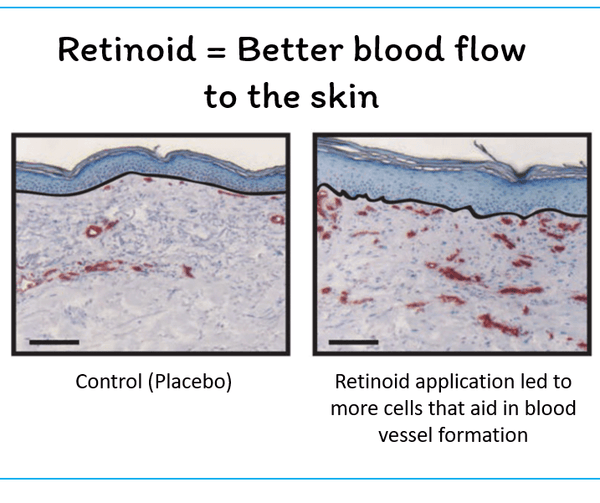 retinoids promote better blood flow to the skin