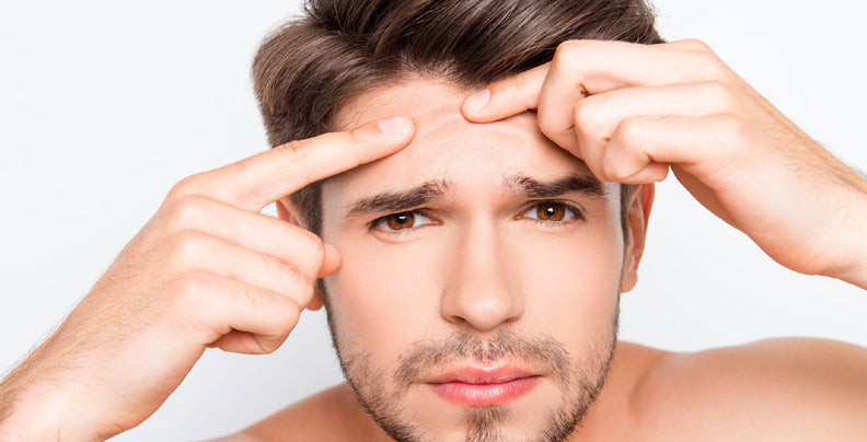 Prevent Acne -  Tips & Tricks to Treat Pimples
