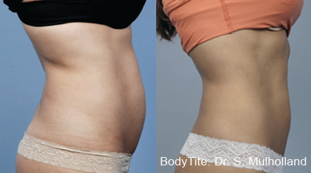 Non-invasive Body Contouring