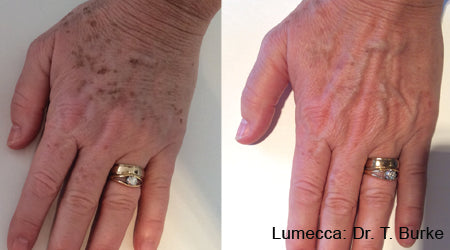 Vascular and Pigmentation Solutions