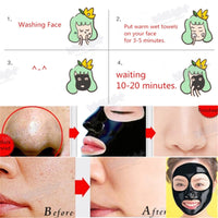 New Charcoal Nose Acne Pore Care Blackhead Face Mask