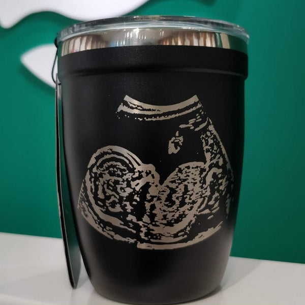 Custom - Ultrasound Engraving