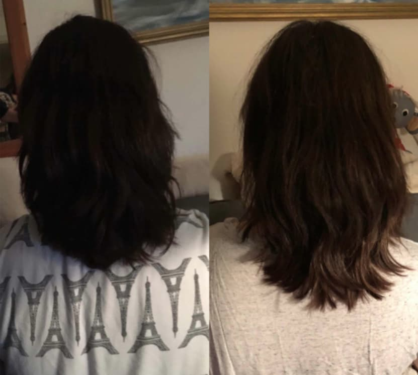 hairlust hair vitamins before and after images