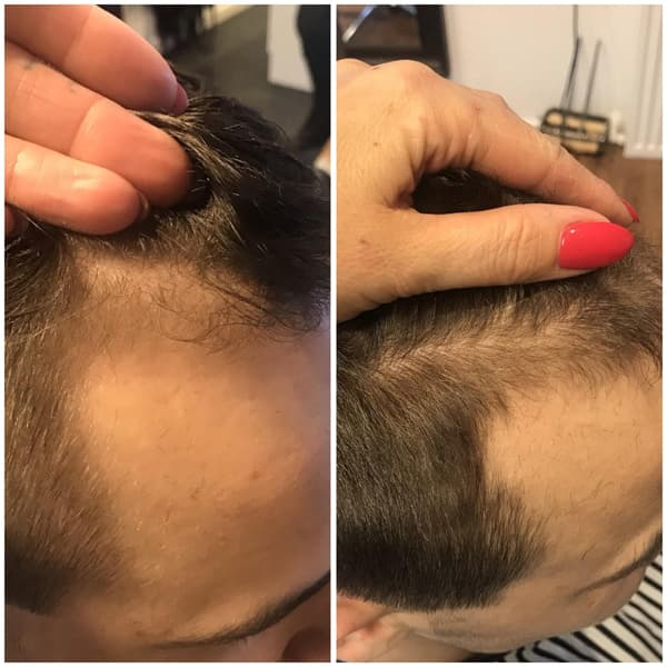 hairlust hair formula men before after