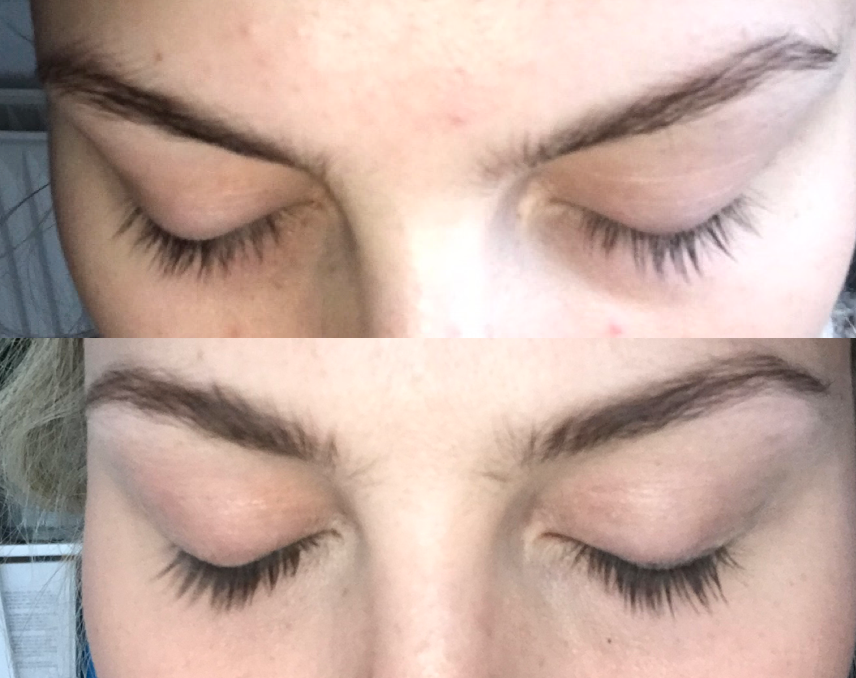 Hairlust eyelash enhancing serum before after