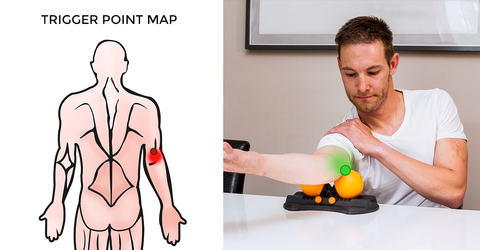 Human - Self-help: Pain Relief with Trigger Points