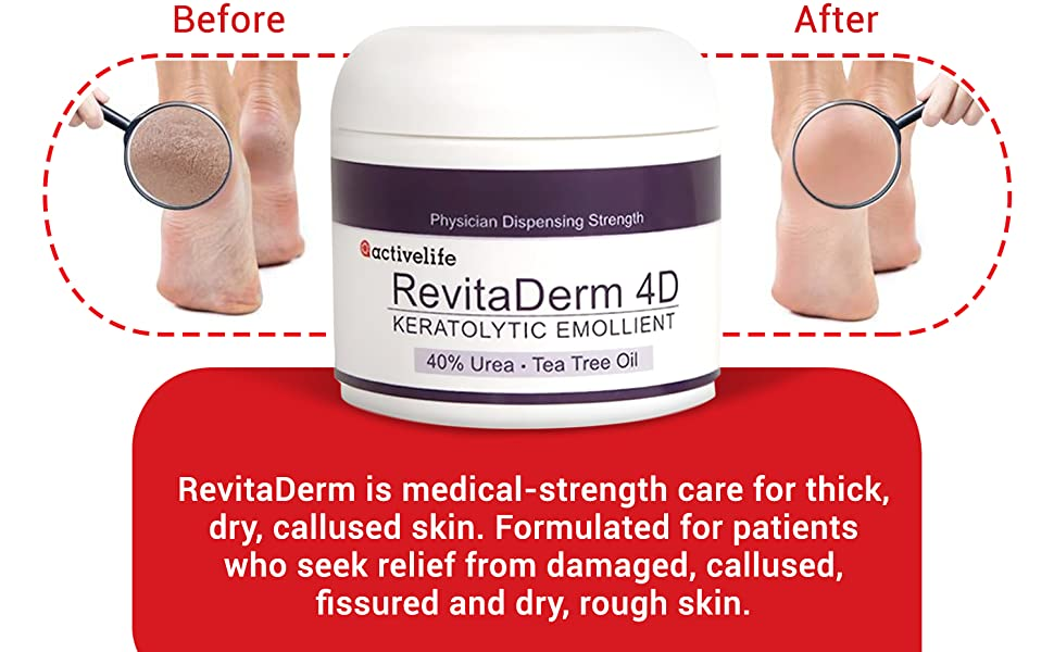 Activelife Revitaderm 4D Before and After Comparison