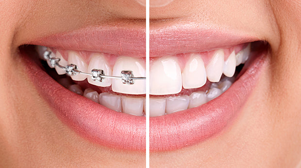 Fast Brace voucher of $2250 with complimentary Orthodontic Assessment