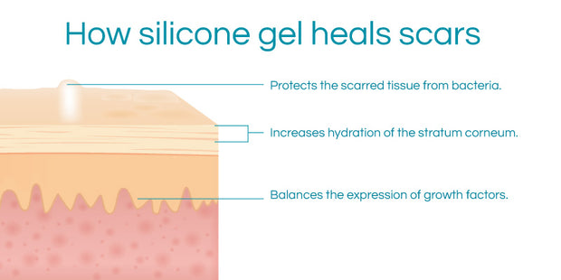 Silicone Sphere for Umbilical Scars