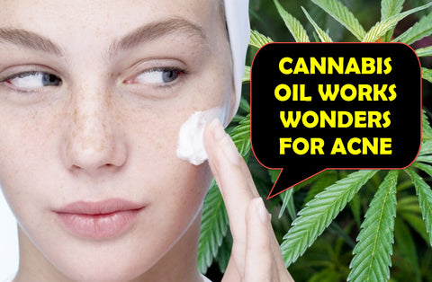 Pacific CBD Co CBD Oil Works Wonders on Acne - Paradise Valley Products