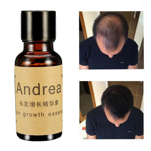 Fast Hair Growth Essence Liquid Treament 20ml Men Women