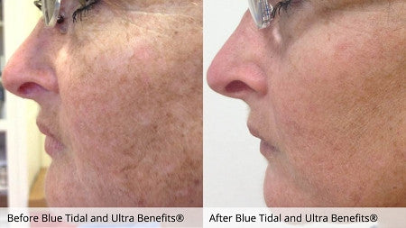 Before and after 6 Blue Tidal Enzyme Treatments and daily use of Ultra Benefits