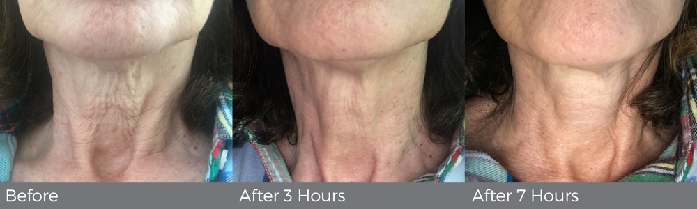 Progress shots of a woman's neck becoming less wrinkled
