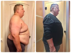 Gwynn, before and after (side)