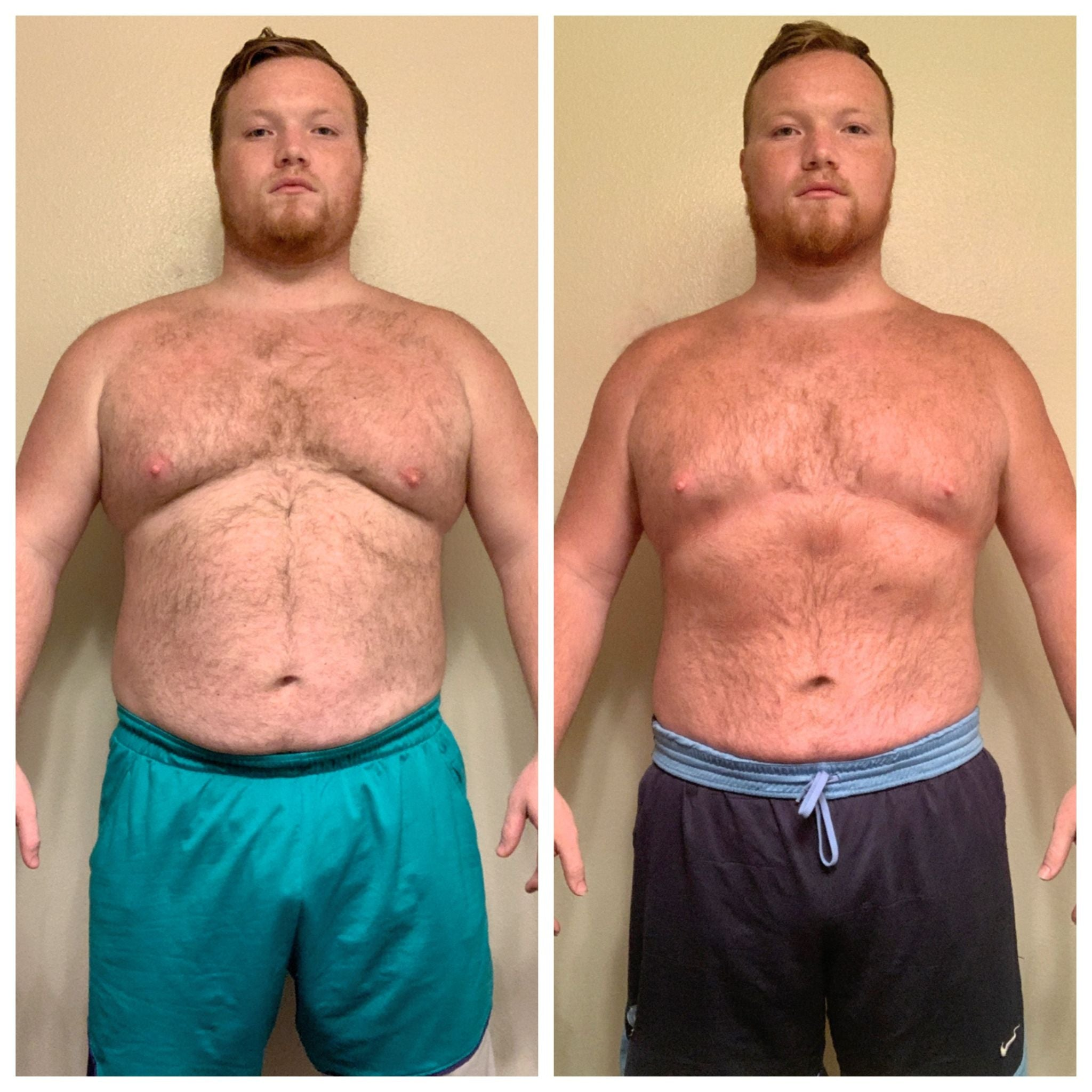 Ryan, before and after