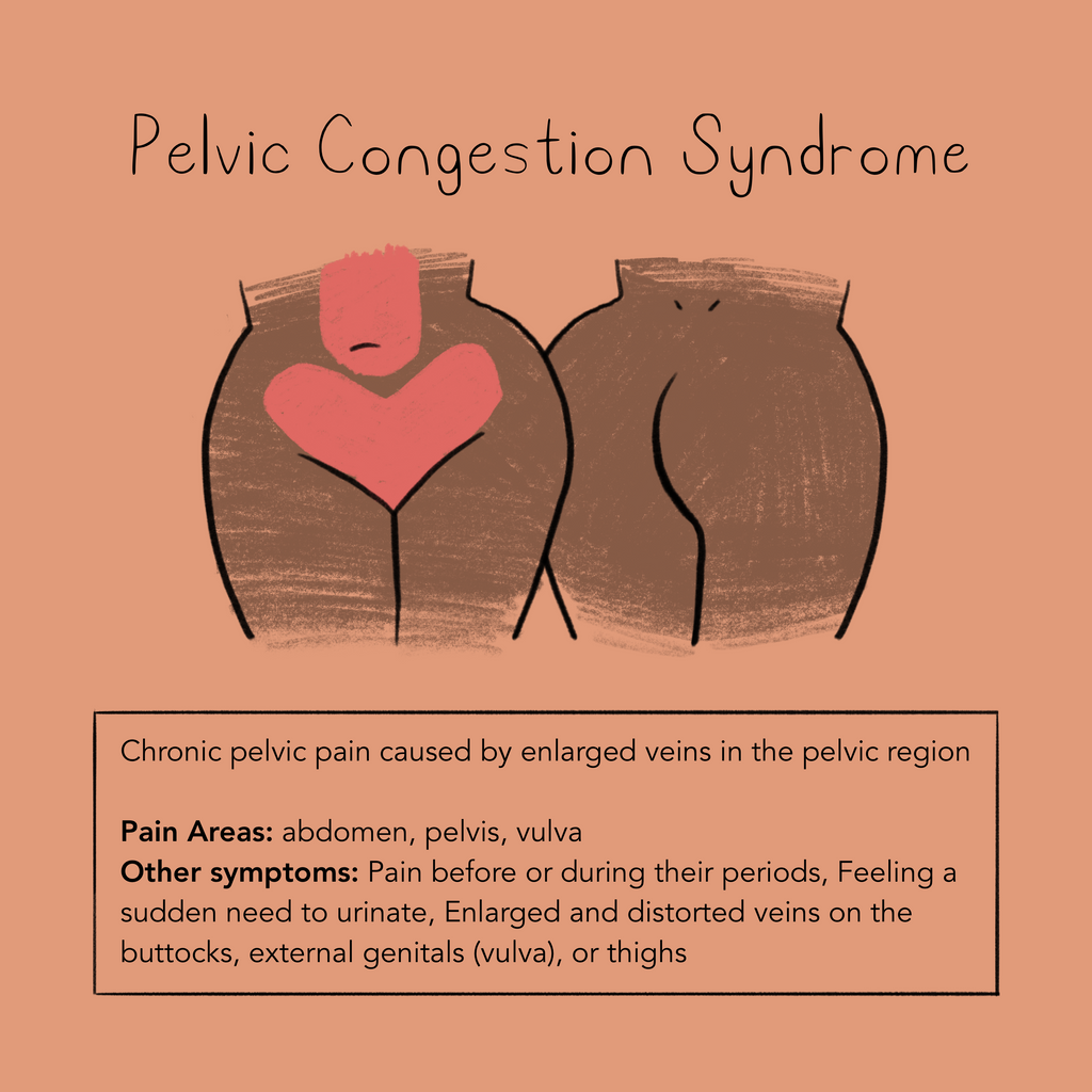 Pelvic Congestion Syndrome is chronic pelvic pain caused by enlarged veins in the pelvic region. Pain areas include the abdomen, pelvic, vulva, and lower back.