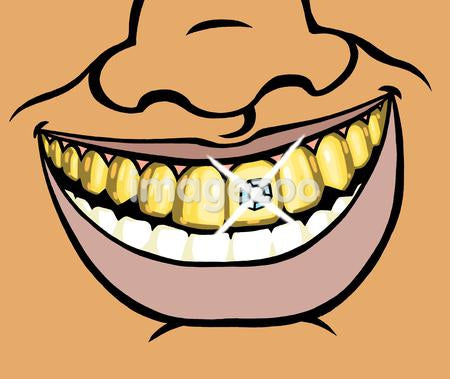 An illustration of a wide smile and a diamond encrusted tooth