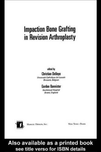 Impaction Bone Grafting in Revision Arthroplasty