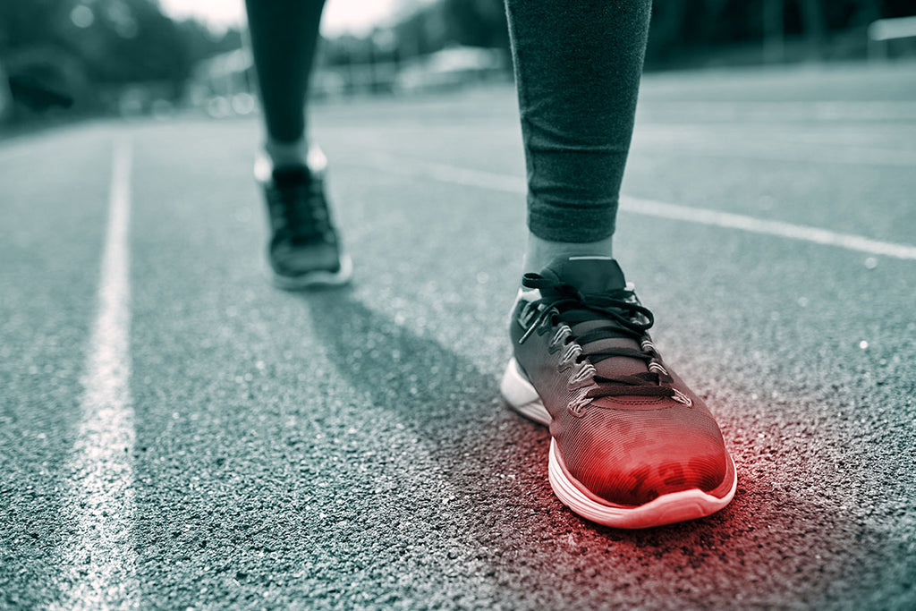 What are the Top 3 Running Injuries and How to Treat Them?