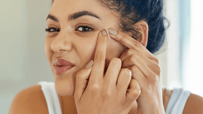 3 Latino Acne Skin Myths We All Grew Up Hearing