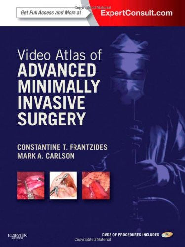 Video Atlas of Advanced Minimally Invasive Surgery: Expert Consult - Online and Print, 1e