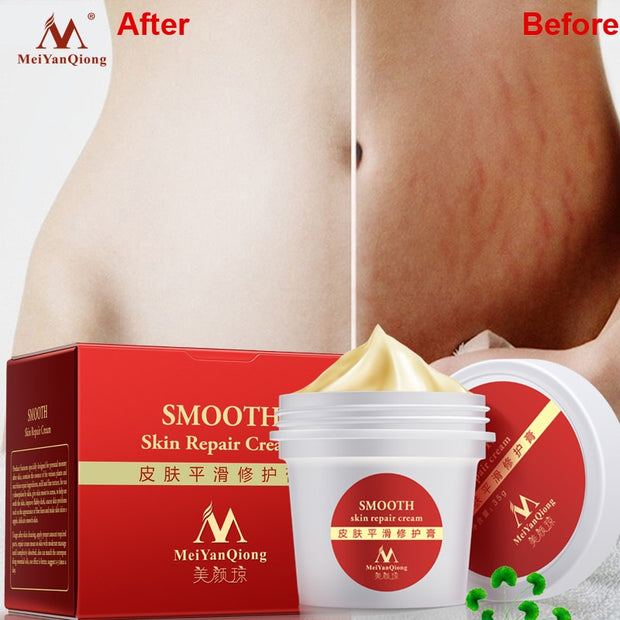 Smooth Skin Cream For Stretch Marks Scar Removal