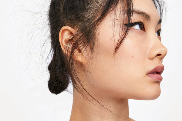 Could You Have Hormonal Acne?
