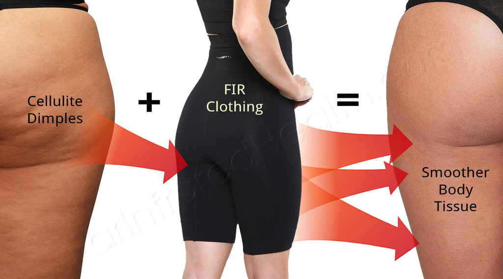 How to Reduce Cellulite Dimpling