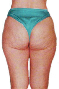 Image to show Cellulite Dimpling