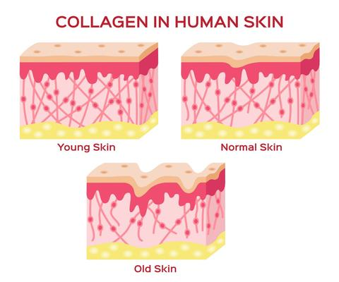 The Benefits of Soluble Collagen For Your Skin