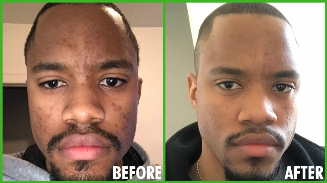 Our Men's Skin Care System