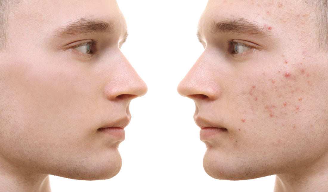 5 Alternatives To Accutane For Treating Acne Tiege Hanley