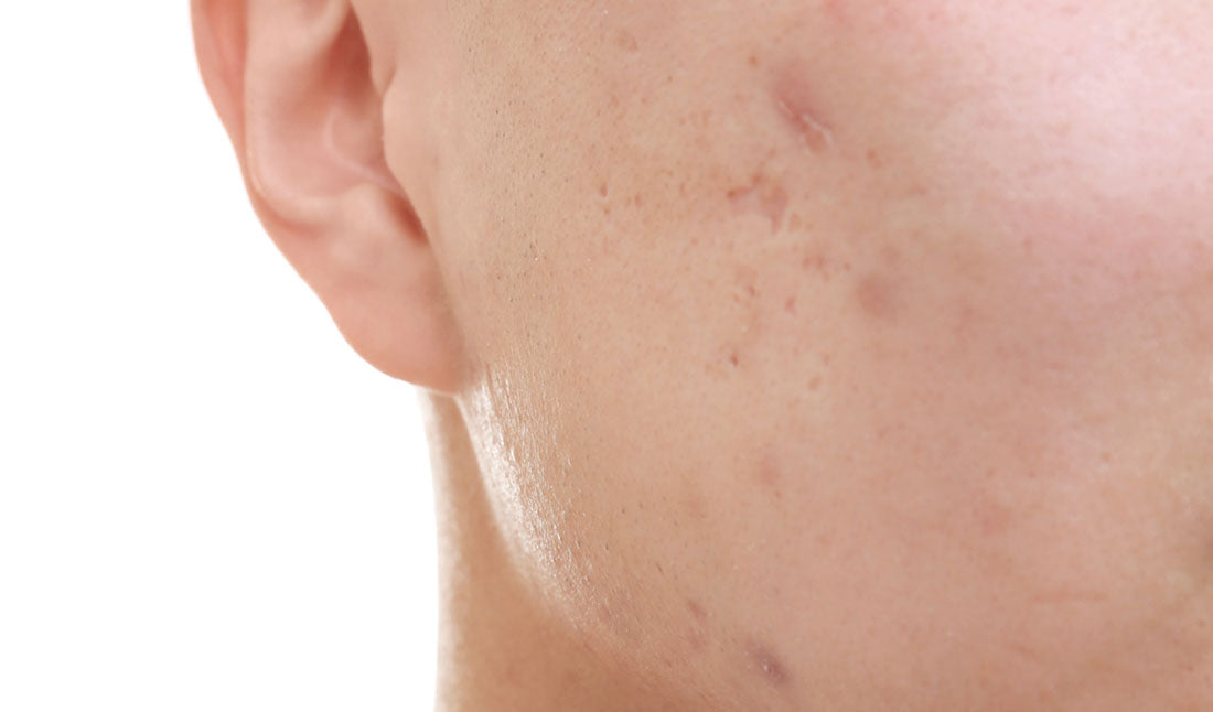 closeup facial acne scars